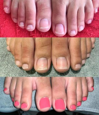 Acrylic toes fullset